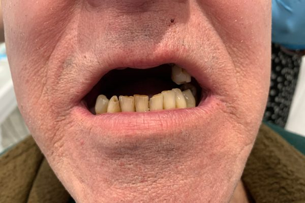 CW_Denture_preop-1